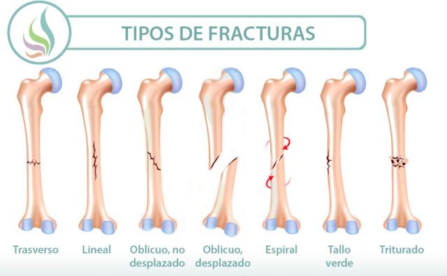 Tipos de fracturas Oseas